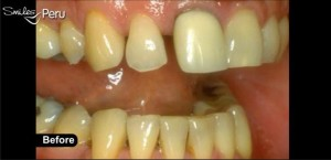 dental crowns smiles peru