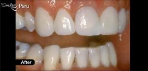 dental crown smiles peru