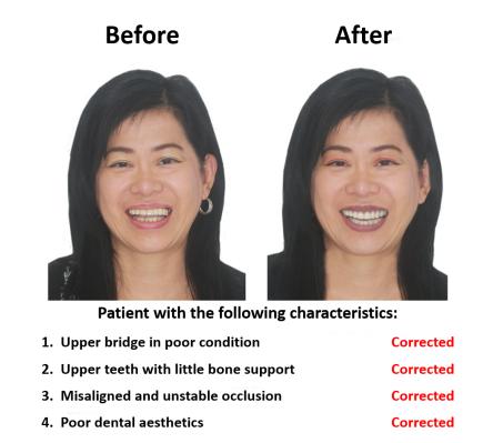Dental implant supported prosthesis Smiles Peru Dental Lima Dentist (1)