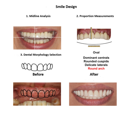 Dental implant supported prosthesis Smiles Peru Dental Lima Dentist (2)