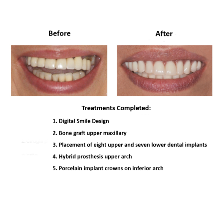 Dental implant supported prosthesis Smiles Peru Dental Lima Dentist (3)