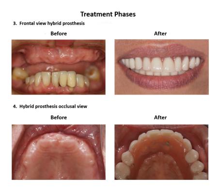 Dental implant supported prosthesis Smiles Peru Dental Lima Dentist (5)