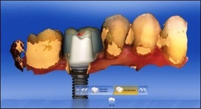 dental implants with digital technology