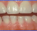 smiles peru cosmetic dentist