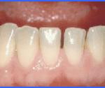 cosmetic dentistry estetica dental