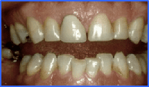 smile design dental peru