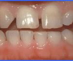 cosmetic dentistry smiles peru lima