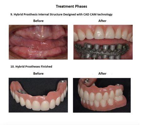 All on Six Dental Implants Smiles Peru Hybrid Proshesis (2)