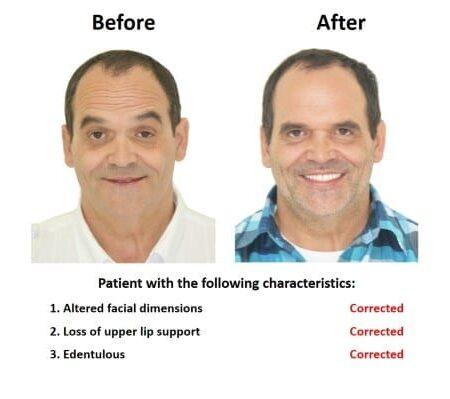 All on Six Dental Implants Smiles Peru Hybrid Proshesis (3)