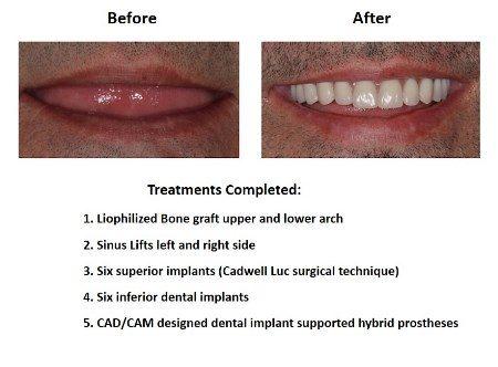All on Six Dental Implants Smiles Peru Hybrid Proshesis (4)