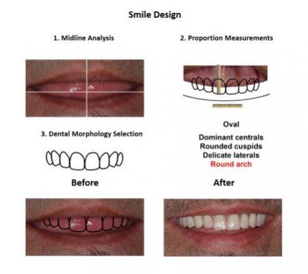 All on Six Dental Implants Smiles Peru Hybrid Proshesis (5)