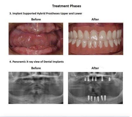 All on Six Dental Implants Smiles Peru Hybrid Proshesis (7)