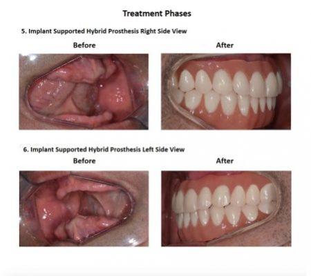All on Six Dental Implants Smiles Peru Hybrid Proshesis (8)