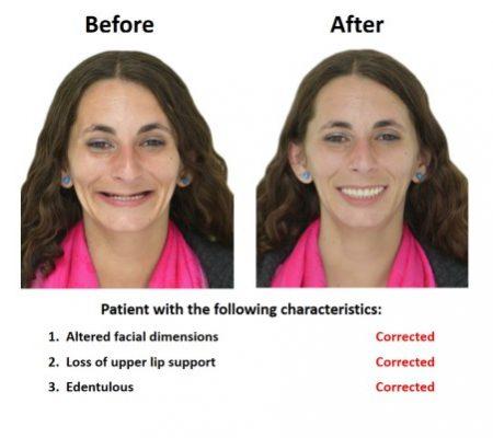 Bone grafting for dental implant prosthesis (1)