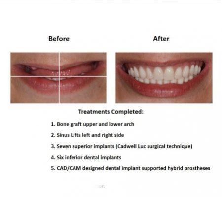 Bone grafting for dental implant prosthesis (2)