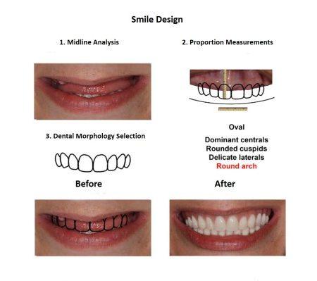 Bone grafting for dental implant prosthesis (3)