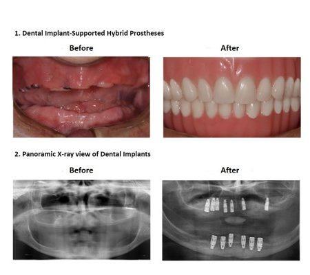 Bone grafting for dental implant prosthesis (4)