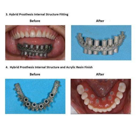 Bone grafting for dental implant prosthesis (5)